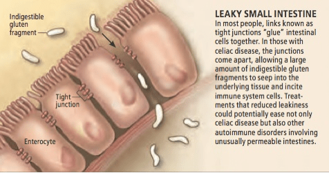 leaky-gut-SI