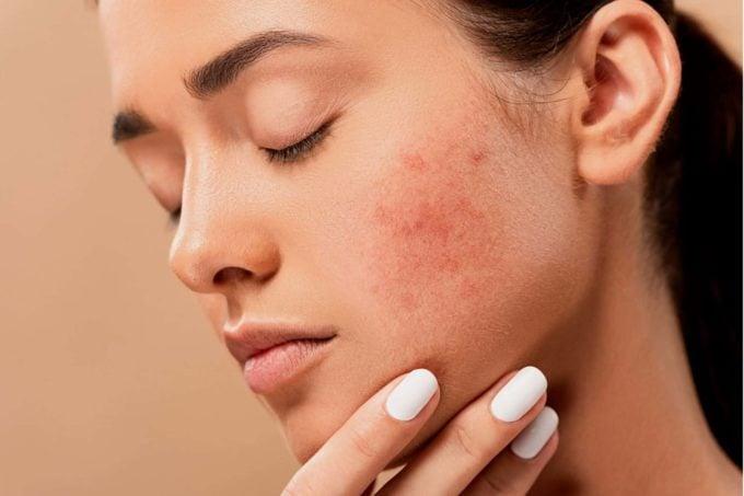hormonal-acne